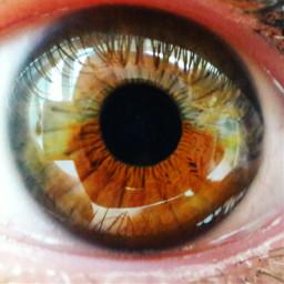 heterochromia girl eye pupil appleofmyeye freetoedit